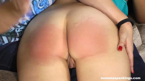 bikini_bottom_blistering_00098